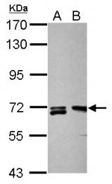 GTX124317 - Plastin 2 / LCP1