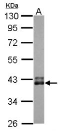 GTX124321 - Transducin alpha-1 chain / GNAT1