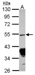 GTX124342 - RRM1 / RR1