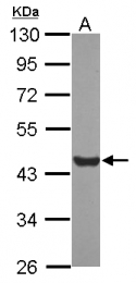 GTX124344 - Glutamine synthetase