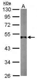 GTX124352 - TUBG1 / Tubulin gamma 1