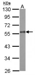 GTX124377 - Zebrafish camk2d2