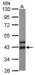 GTX124386 - ATP6V0D1