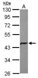 GTX124403 - Glutamine synthetase