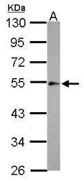 GTX124410 - Integrin-linked protein kinase