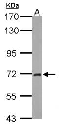 GTX124420 - Plastin 2 / LCP1