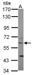 GTX124421 - CCT8 / TCP1 theta