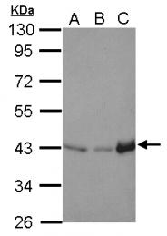 GTX124431 - Isocitric dehydrogenase alpha / IDH3A