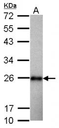 GTX124438 - Superoxide dismutase 2 / SOD2