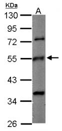 GTX124463 - TUBB2C