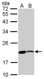 GTX124471 - Zebrafish Nucleoside diphosphate kinase
