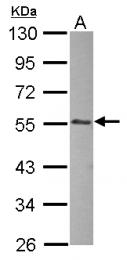 GTX124472 - Integrin-linked protein kinase