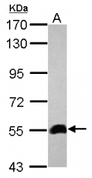 GTX124482 - Zebrafish aldh2a