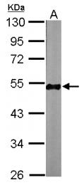 GTX124485 - TUBB / TUBB5