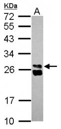 GTX124486 - HMGB1