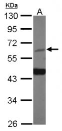 GTX124499 - HDAC1