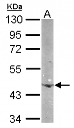 GTX124500 - Beta-actin-1