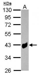 GTX124622 - Transducin alpha-1 chain / GNAT1