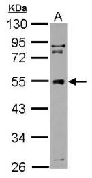 GTX125050 - TUBG1 / Tubulin gamma 1