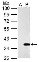 GTX125898 - Galectin-4