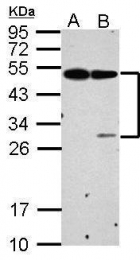 GTX125912 - CD201 / EPCR