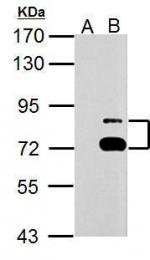 GTX125938 - TTC39B / C9orf52