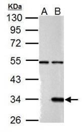 GTX127352 - Galectin-9