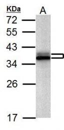 GTX127928 - hnRNP-A2/B1 / HNRNPA2B1