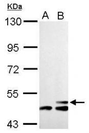 GTX128013 - mHMG-CoA synthase / HMGCS2