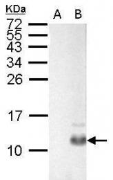 GTX128056 - Pancreatic prohormone