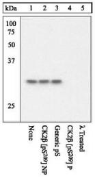 GTX12861 - Casein kinase II beta