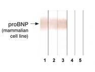 GTX13111 - Natriuretic peptides B