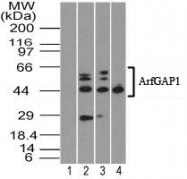 GTX13258 - Synapsin-2