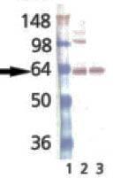 GTX13259 - VAMP-1 / Synaptobrevin-1
