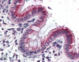 GTX13260 - VAMP-1 / Synaptobrevin-1