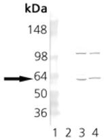 GTX13501 - CCT1 / TCP1