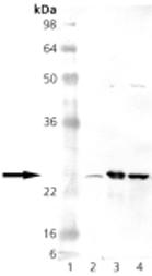GTX13533 - Superoxide dismutase 2 / SOD2