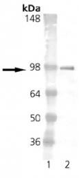 GTX13538 - Estrogen receptor alpha