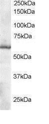 GTX13574 - Thioredoxin reductase 1 / TXNRD1