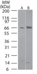 GTX13577 - FLI1