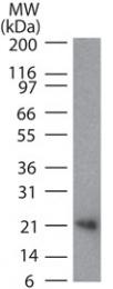 GTX13582 - CD254 / RANKL