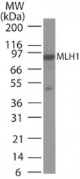 GTX13659 - MLH1