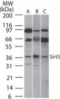 GTX13697 - SIRT5