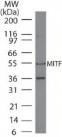 GTX13703 - MITF