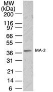 GTX13705 - PNMA2