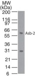 GTX13710 - ASB2