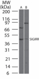 GTX13717 - SIGIRR / TIR8