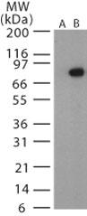 GTX13808 - Bacillus anthracis protective antigen