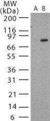 GTX13809 - Bacillus anthracis protective antigen