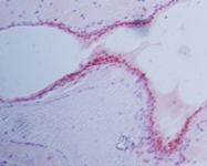 GTX13877 - Progesterone receptor